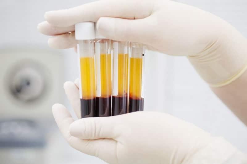 Drug Tests